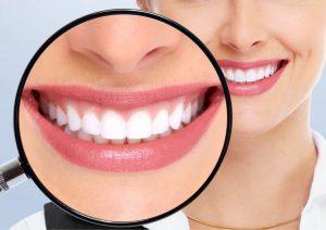 חיוך של מיליון דולר: איך משפרים את מראה השיניים?